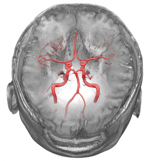 Bloodvessels inside head