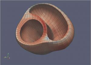 Computer generated cardiac model